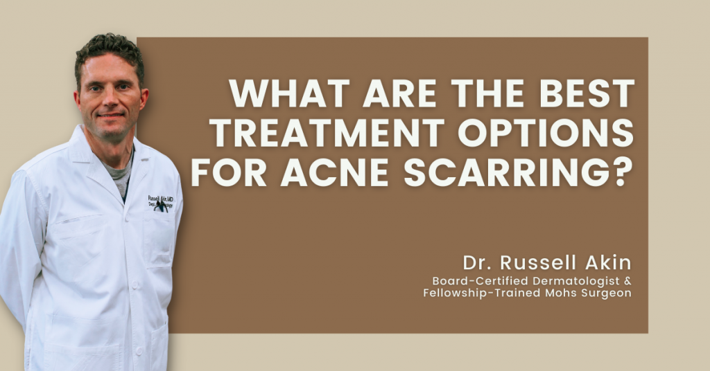 Best treatment options for acne scarring